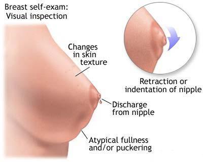 simptome cancer mamar la barbati
