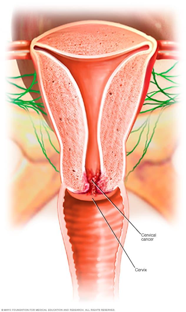 sintomas de cancer de utero por hpv)