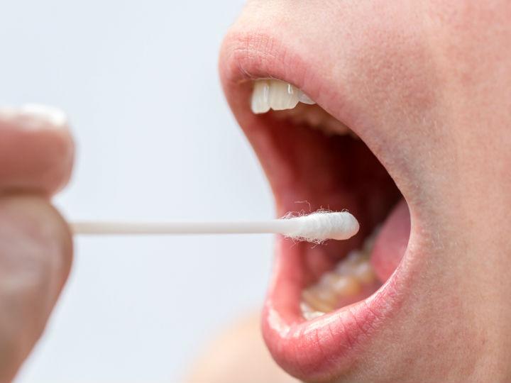 sintomas del papiloma en la boca)