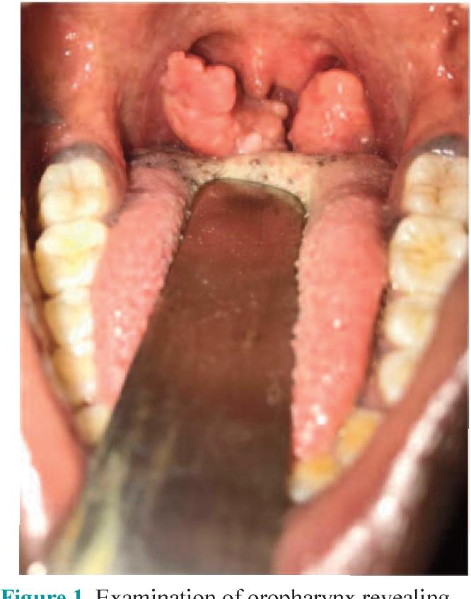 squamous papilloma of tonsil