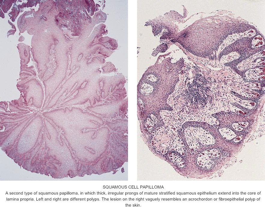 squamous papilloma vs squamous cell carcinoma