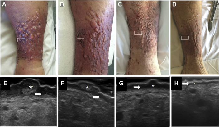 Varicoasă dermatita labia