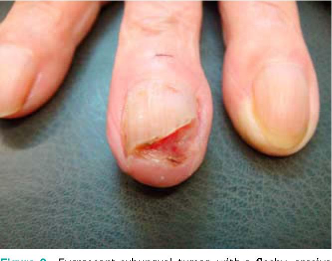 Care sunt simptomele cancerului de piele celulară scuamoasă și cum poate fi vindecată?