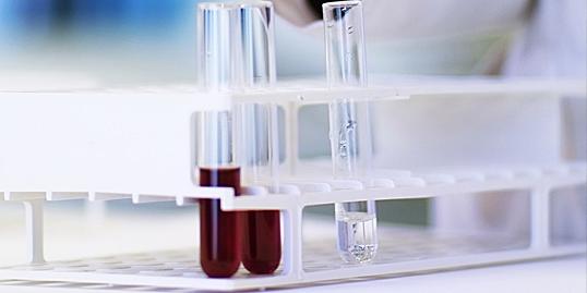 test hiv anonimo mestre