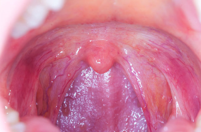 throat cancer because of hpv