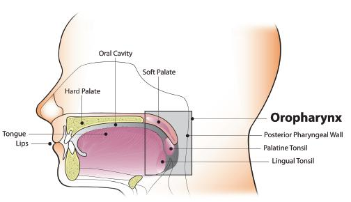 throat cancer caused by hpv)