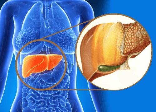 Semne ca ficatul tau acumuleaza toxine
