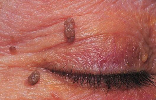 treatment with papillomas)