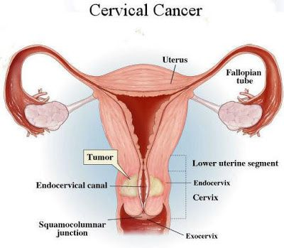 uterine cancer homeopathic treatment
