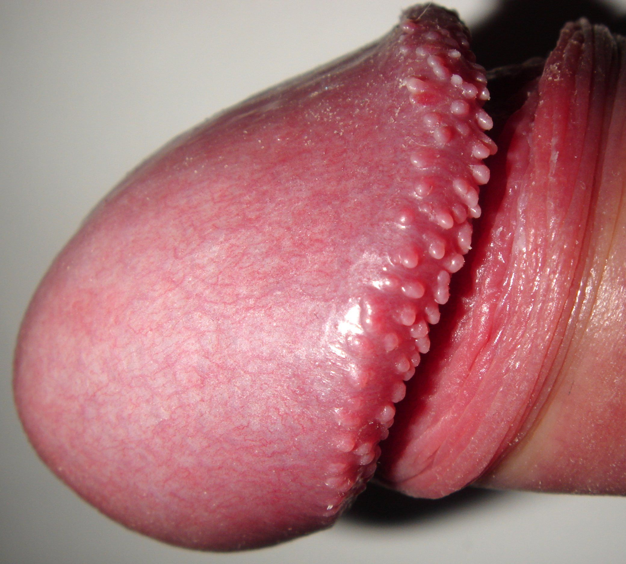 vestibular papillae home treatment