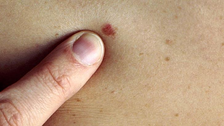 vindecarea cancerului de piele)