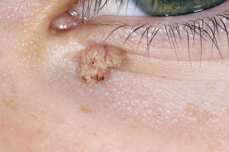 viral papilloma eyelid treatment