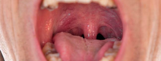 virus de papiloma humano en boca y garganta