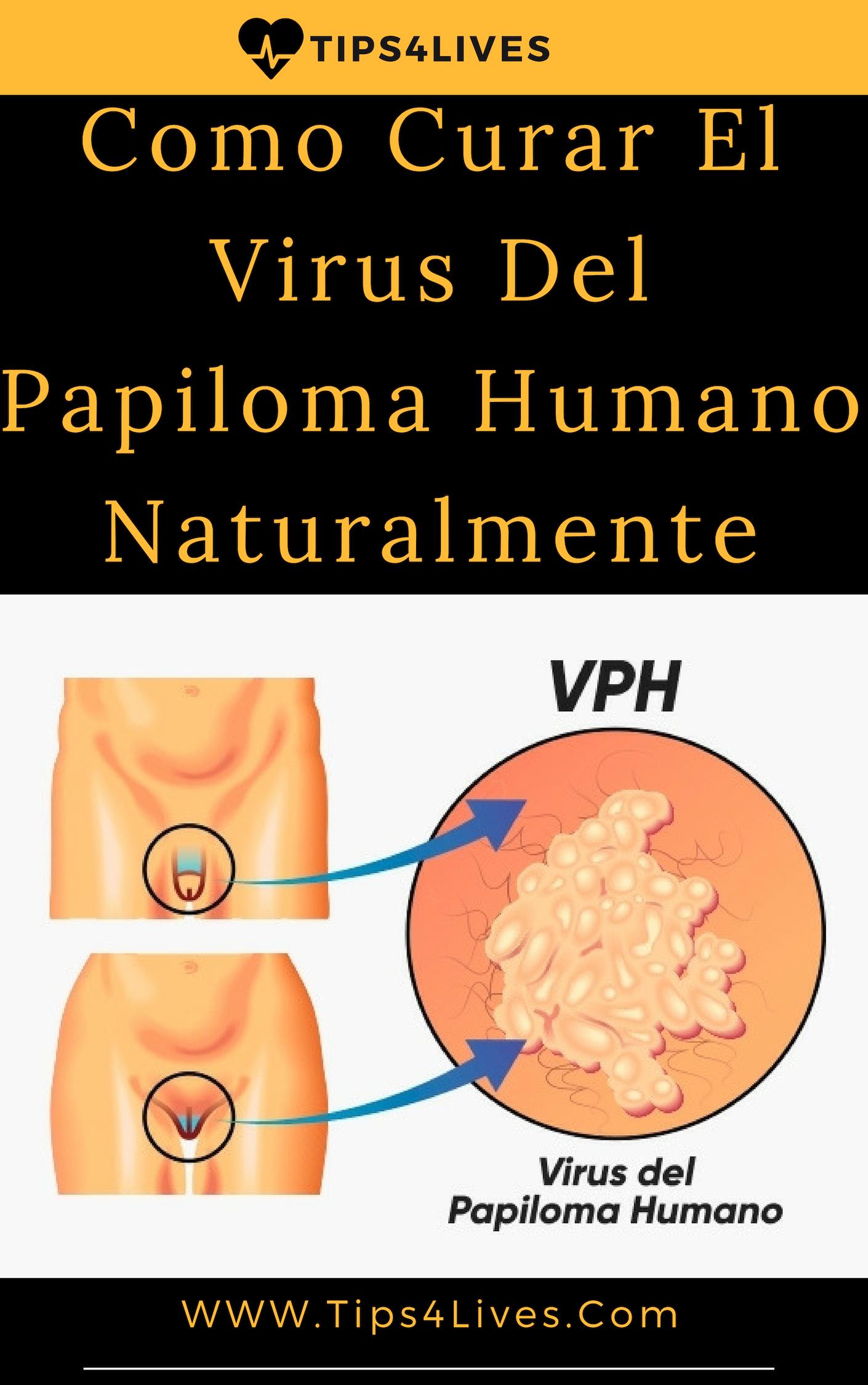 virus de papiloma humano no tiene cura)