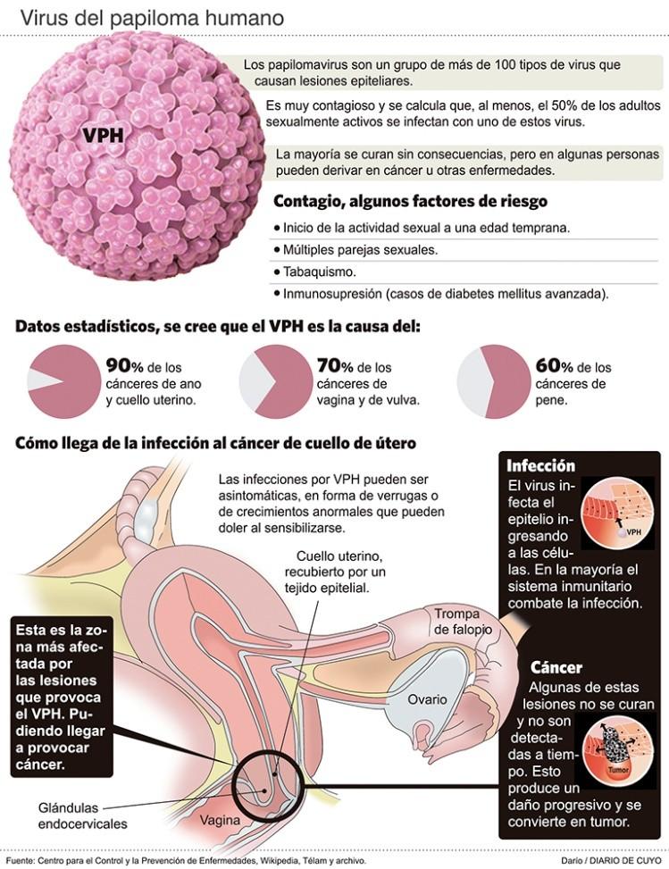 virus del papiloma humano como se detecta