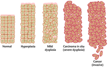virus del papiloma mujeres sintomas hpv testing for primary cervical cancer screening a health technology assessment