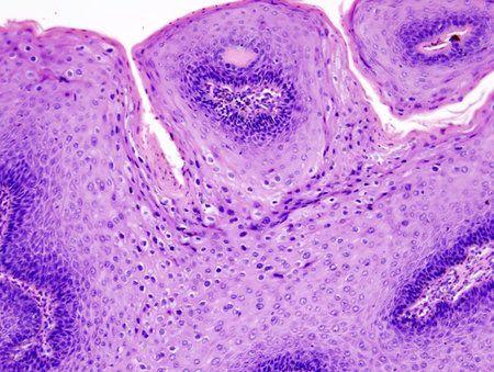 virus del papiloma signos sintomas y tratamiento