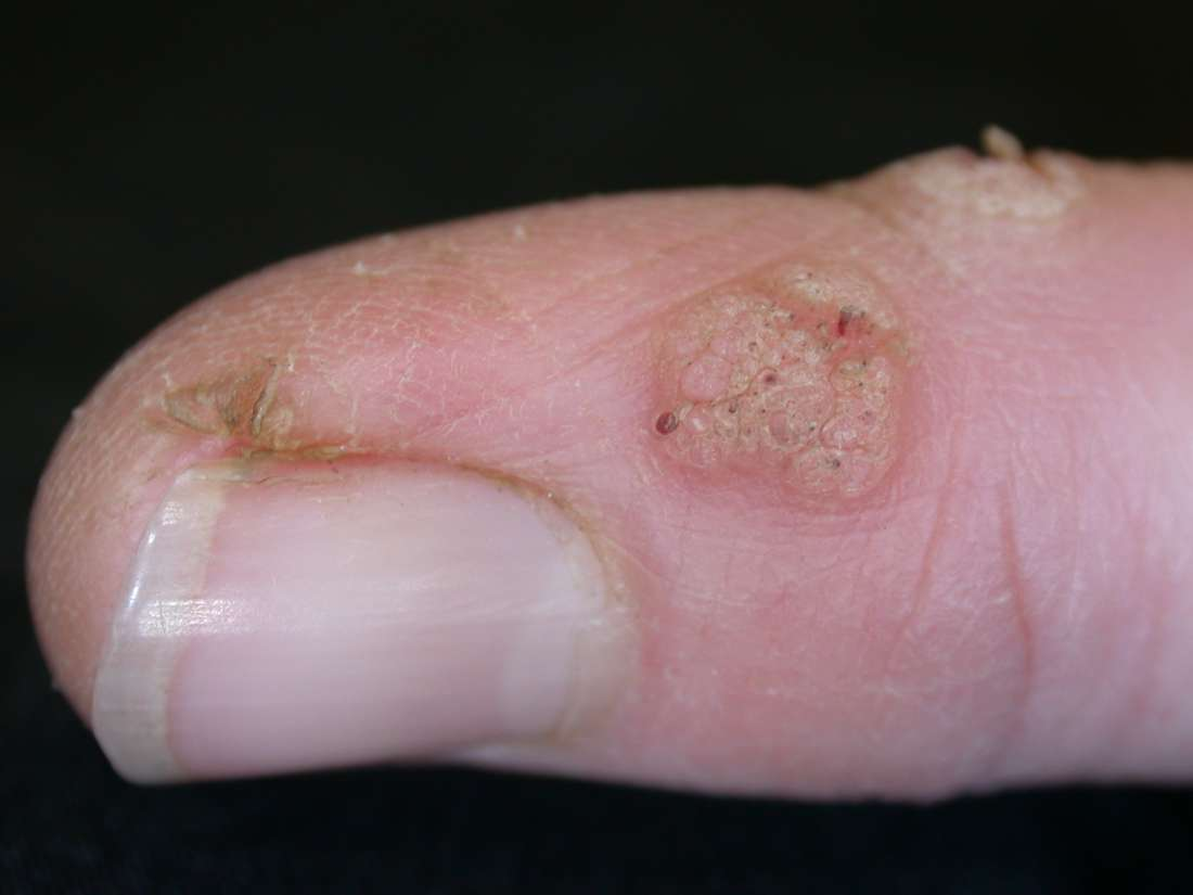 wart on foot or blister)