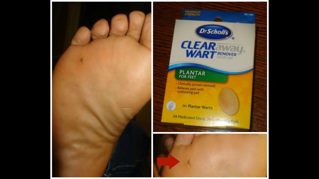 wart removal on foot surgery como eliminar los oxiuros del ano