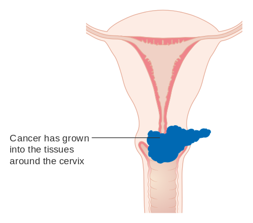 warts and ovarian cancer