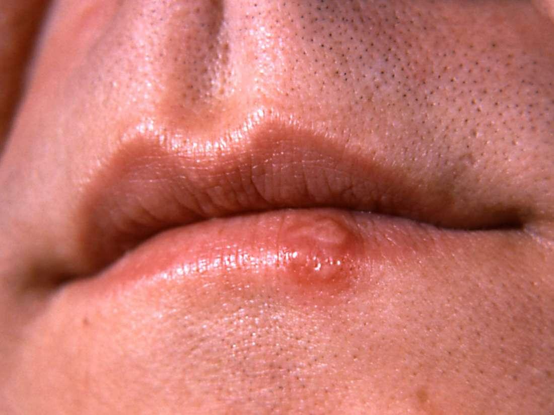 warts mouth symptoms