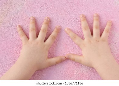 warts on hands in toddlers