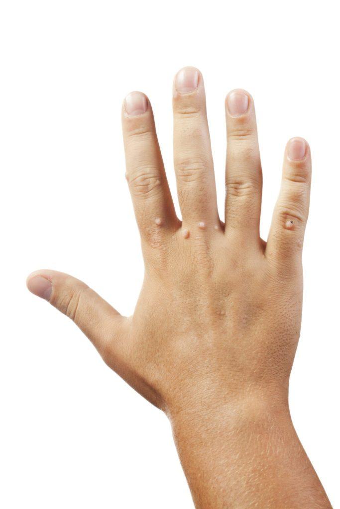warts on infants hands