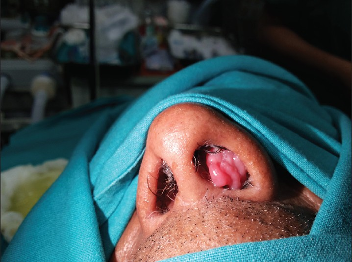 what does a nasal papilloma look like