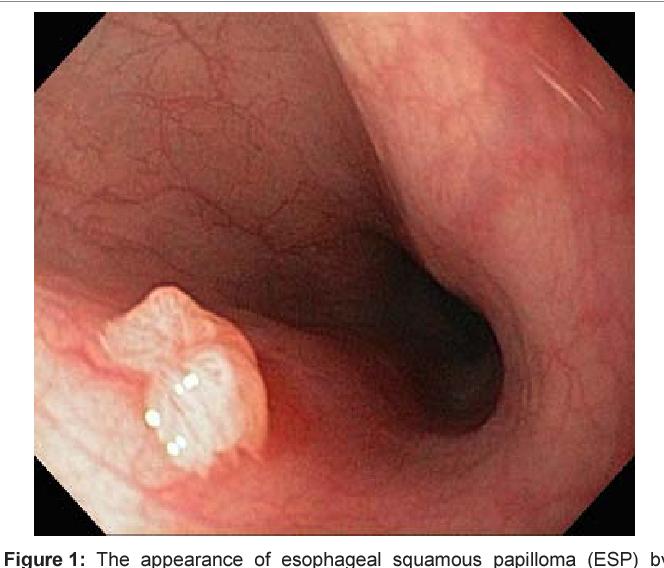 Diagnostic Pathology GI Endoscopic Correlations - kd-group.ro