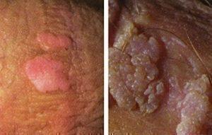 genital hpv diagnosis