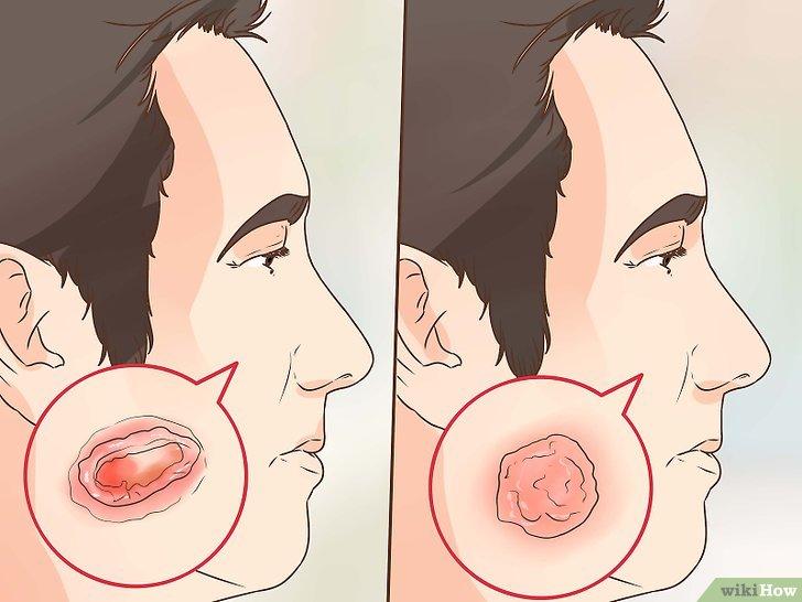 hpv virus in pregnancy