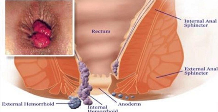 cancer colon y hemorroides