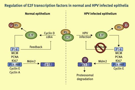 hpv virus p16)