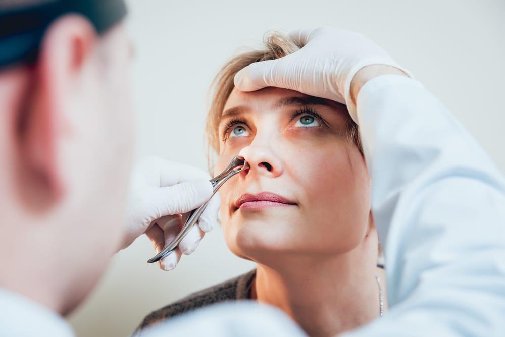 papiloma nasal tomografia