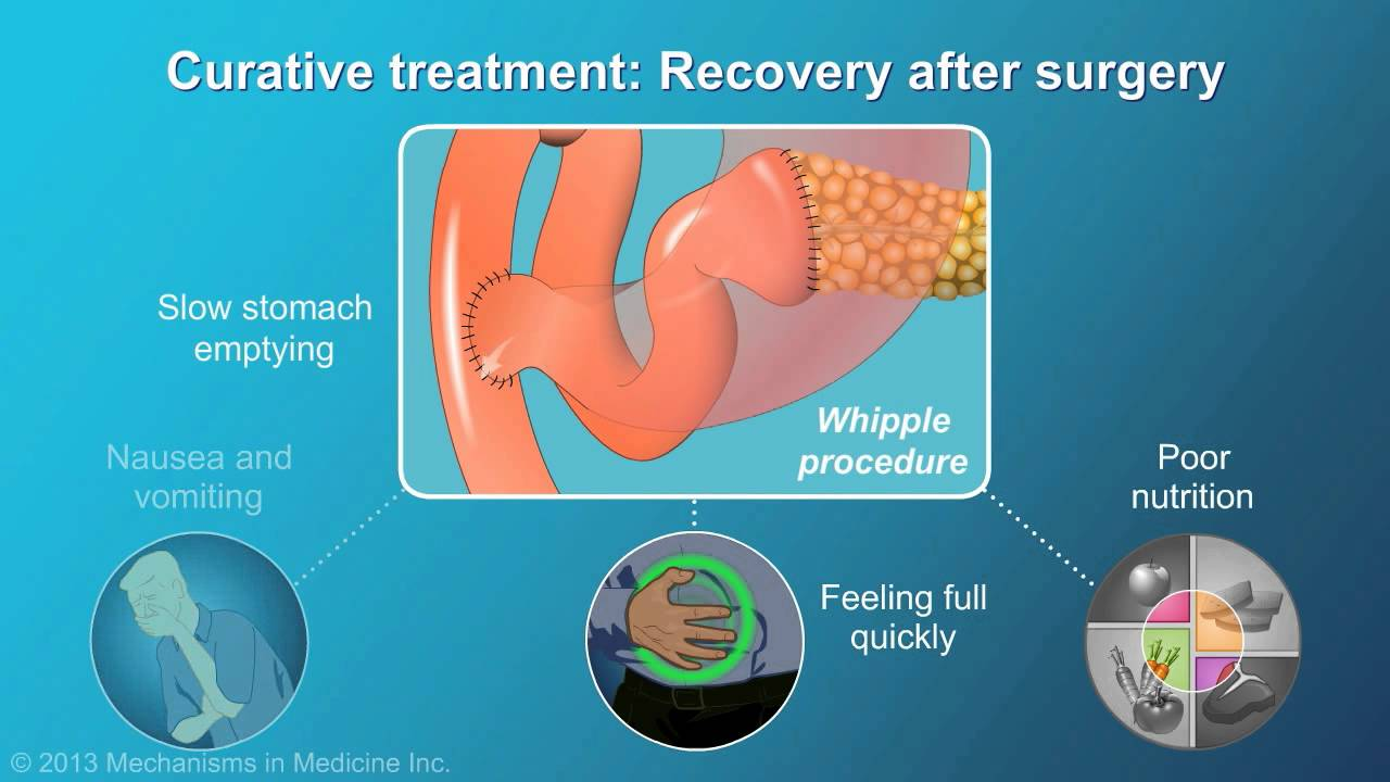 pancreatic cancer best treatment)
