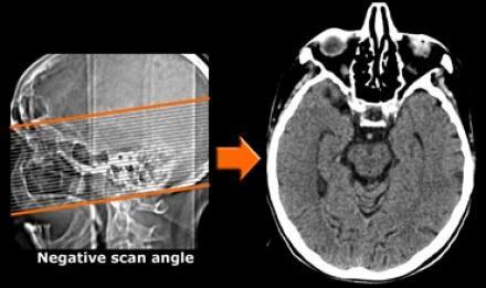 cancer cerebral stade 4)