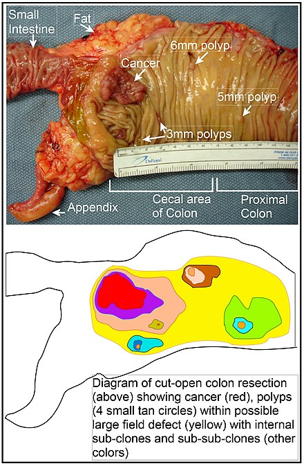 cancer de colon la copii