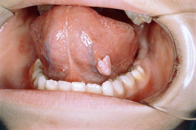 mouth warts on tongue)