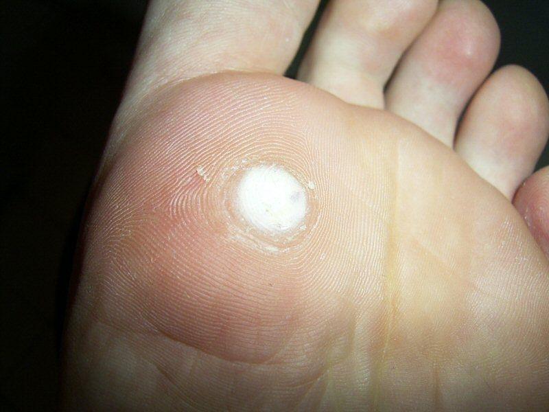 foot wart white)
