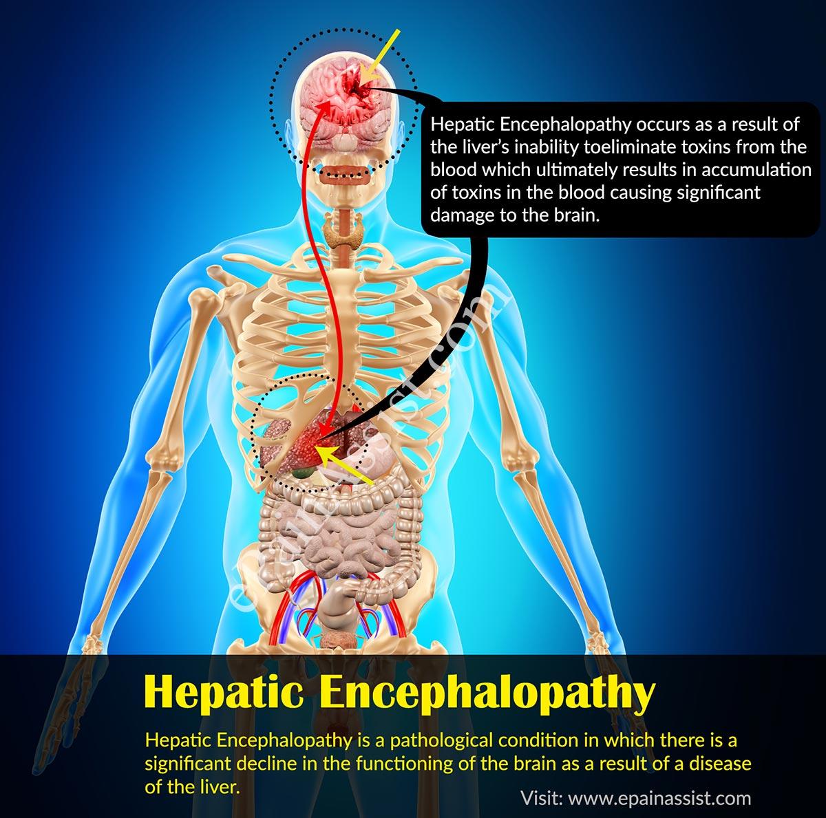liver cancer hepatic encephalopathy)