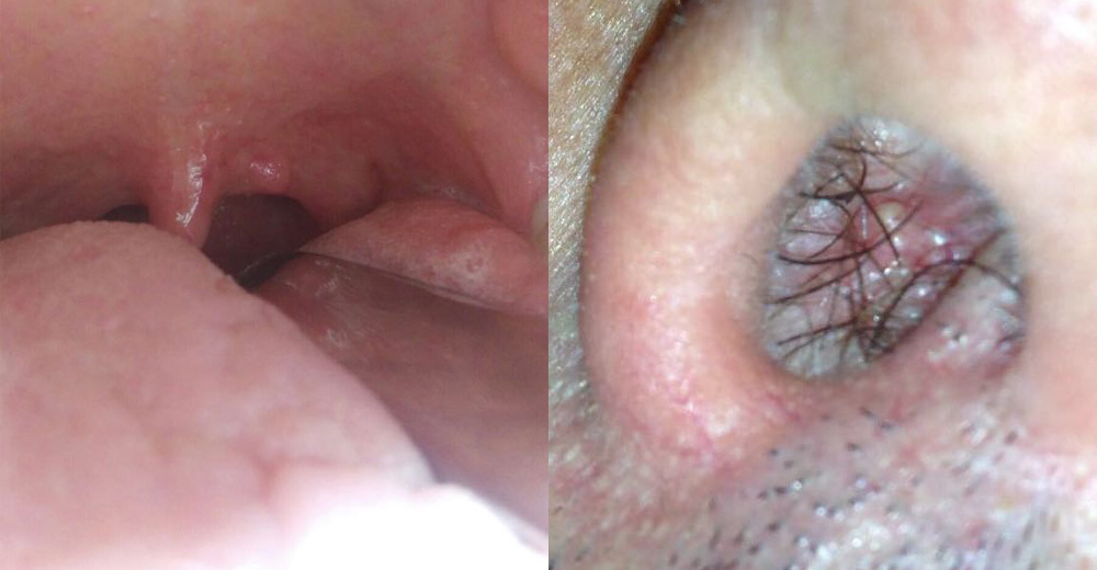 infezione da papilloma virus sintomi)