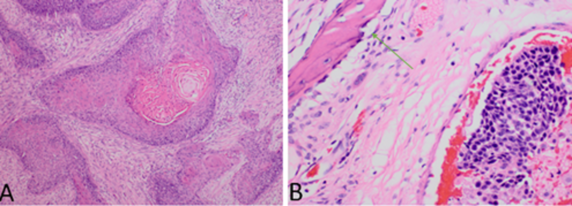 squamous cell carcinoma arising in inverted papilloma
