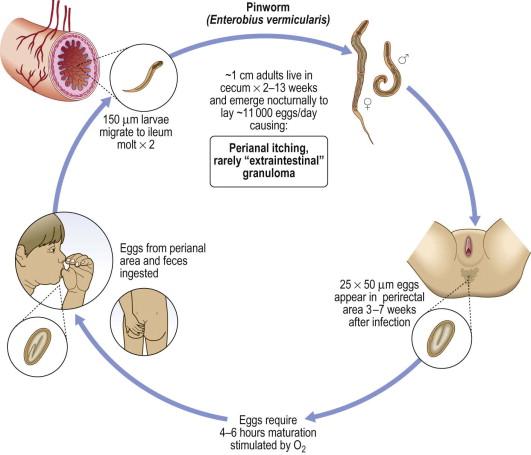 pinworms previne pierderea în greutate