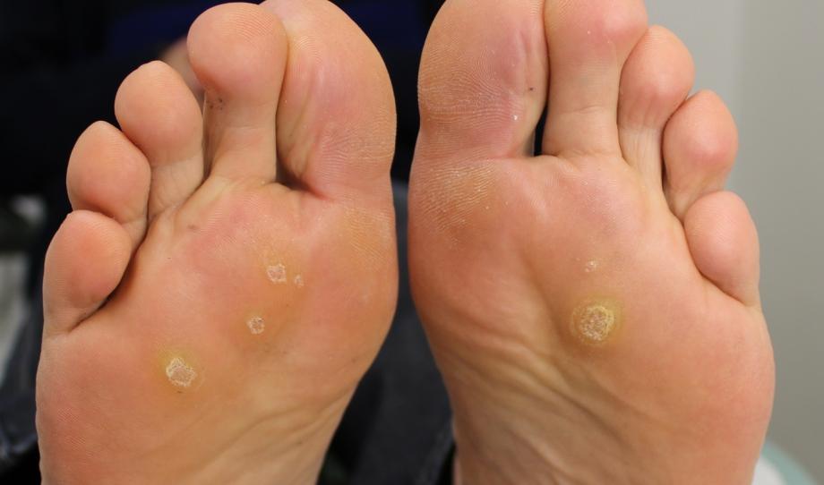 veruca foot infection treatment