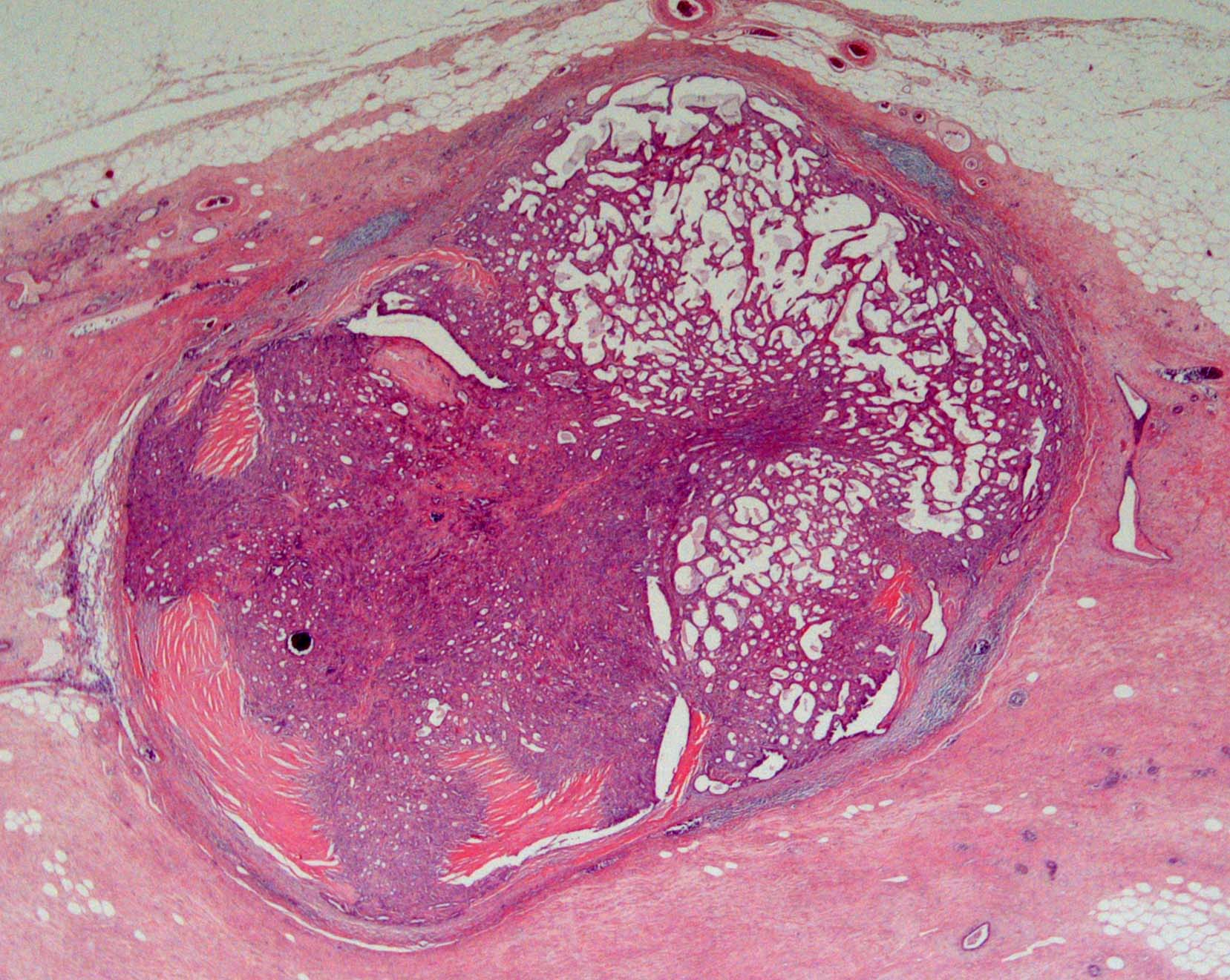 intraductal papilloma of breast pathology outlines