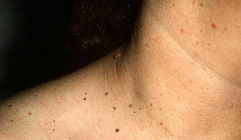 cara menghilangkan papilloma di leher)