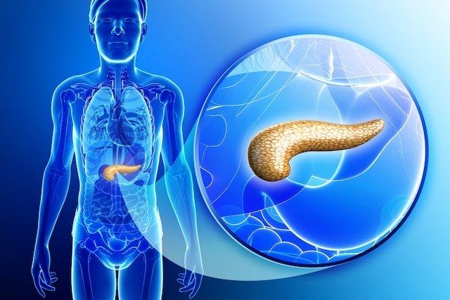 cancer de pancreas y bilirrubina alta)