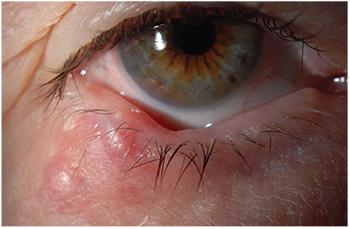 papilloma and eye