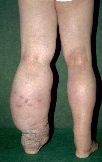 confluent reticulated papillomatosis dermnet)