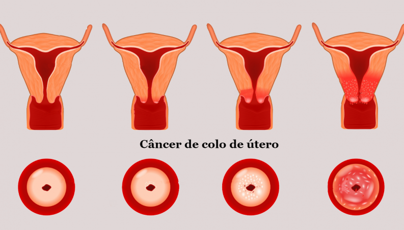 papiloma cancer uterino
